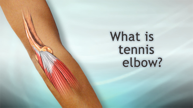 <div class=media-desc><strong>What is tennis elbow?</strong><p>I'm Dr. Alan Greene and let's talk for a moment about tennis elbow. Tennis elbow is a kind of tendonitis. It's an inflammation and injury to the tendons usually on the outside of the elbow. Tendons are those fibrous bands that connect the muscle into the bone. When those tendons get damaged, as they often can in racquet sports or also in baseball, sometimes over using a screwdriver, a lot of ways you can do it, we typically call it tennis elbow or tendonitis. How do you prevent it? When you are playing tennis one of the most important things is to avoid putting too much stress on that tendon on the outside of the elbow. The problem usually comes with your backhand. So if you do a two-handed backhand, you can greatly reduce the stress. You can also reduce the stress by using a racquet that has the right size grip for your hand. Don't play with somebody else's racquet very often. And make sure the strings are not over tightened. It puts too much stress when the ball hits suddenly with over tightened strings. If you have a tendency to get tennis elbow, it could also be very useful immediately after playing to ice the elbow and take some ibuprofen to prevent swelling and inflammation. Now, if you do develop tennis elbow how do you treat it? It comes down to a combination of rest, ice, compression, and elevation. In terms of rest, you want to completely rest your elbow for at least a couple of days and really for as long as it is still sore. In terms of ice that first day, ice very frequently. It's great even every 15 minutes to have an ice pack on there briefly and for the next couple of days, at least every 3 or 4 hours if you can. It will help speed the healing. Wearing a bandage on there to help support the elbow is good. It can also be good when you are playing tennis to help prevent tennis elbow. The wrap on there can help support the elbow and keep it warm and make it less likely to injure. And finally when you are having the severe pain at the beginning especially, keeping your elbow elevated above your heart can help as well and hopefully this will get you back out and physically active again very quickly.</p></div>