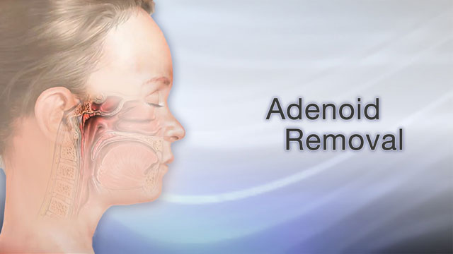 <div class=media-desc><strong>Adenoid removal</strong><p>Why do the adenoids need to be removed?The adenoids are glands, located between the airway your child breathes into through their nose, and the back of your child's throat. Like your child's tonsils, the adenoids can often become swollen. When this happens, your child's airway can become blocked, and he may have trouble breathing through his nose.