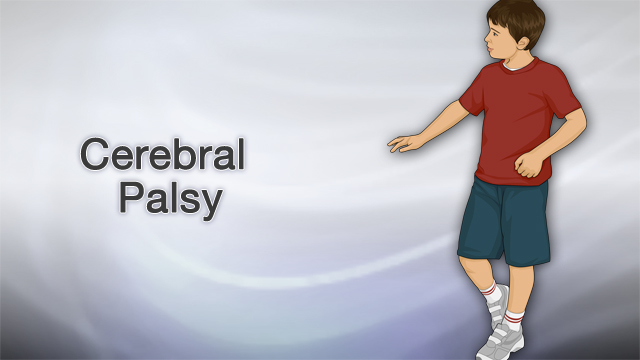 <div class=media-desc><strong>Cerebral palsy</strong><p>CP is caused by injuries or abnormalities of the brain. Most of the problems occur as the baby grows in the womb. Premature babies have a slightly higher risk of developing CP. Cerebral palsy may also occur during early infancy as a result of several conditions, including Bleeding in the brain, Brain infections, Head injuries, infections in the mother during pregnancy or from severe jaundice.</p></div>