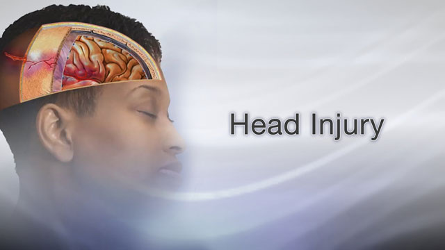 <div class=media-desc><strong>Head injury</strong><p>The most common type of head injury is a concussion. That's when a hit in the head makes your brain jiggle around in your skull. You can also get a bruise on your brain, called a contusion. Brain contusions are a lot more serious than bruises from a bump on the arm or leg. Other types of head injuries include a fractured skull or a cut on your scalp. 