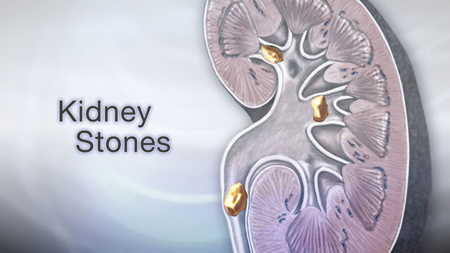 <div class=media-desc><strong>Kidney stones</strong><p>If you ever have severe pain in your belly or one side of your back that comes and goes suddenly, you may be passing a kidney stone. Let's talk about the painful condition of kidney stones. 