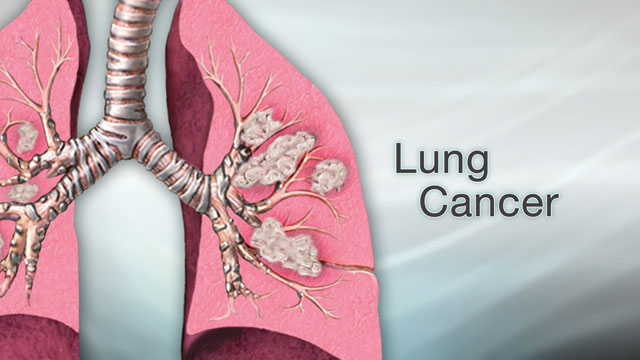 <div class=media-desc><strong>Lung cancer</strong><p>Cancer can affect just about any part of the body, from the colon to the pancreas. Some cancers grow quickly, while others grow more slowly and are easier to treat. But of all the different cancers out there, one of the deadliest is lung cancer. Let's talk today about lung cancer.