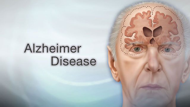 <div class=media-desc><strong>Alzheimer disease</strong><p>Imagine waking up this morning, and not being able to remember your own name, or recognize your spouse? While Alzheimer disease is a more gradual process, over time it can destroy memory to the point where people can't even remember the simplest and most important details of their lives. Let's talk more about Alzheimer disease.