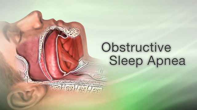 <div class=media-desc><strong>Obstructive sleep apnea</strong><p>Does your significant other complain that your snoring wakes them up during the night or keeps them from getting to sleep in the first place? Do they poke you, waking you up because sometimes they're afraid you stopped breathing? If so, you may have a condition called obstructive sleep apnea.