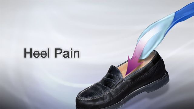 <div class=media-desc><strong>Heel pain</strong><p>Heel pain can be a common problem. Though the cause is rarely serious, the pain can be severe and sometimes disabling. Heel pain is often the result of overusing your foot. Causes may include, running, especially on hard surfaces like concrete, tightness in your calf, or from Achilles tendonitis (inflammation of that large tendon that connects your calf muscle to your heel), shoes with poor support, sudden inward or outward turning of your heel, or landing hard or awkwardly on your heel after a jump or fall. Problems related to heel pain include bursitis (inflammation of the bursa at the back of the heel), bone spurs in the heel, and plantar fasciitis (swelling of the thick band of tissue on the bottom of your foot). Heel pain is something you can usually treat at home. If you can, try resting as much as possible for at least a week. Apply ice to the painful area twice a day or so, for 10 to 15 minutes. Take acetaminophen or ibuprofen for pain and inflammation. If you need to, you can buy a heel cup, felts pads, or shoe inserts to comfort your heel. You should call your doctor if your heel pain does not get better after two or three weeks of home treatment. But also call your doctor if your pain is getting worse, or your pain is sudden and severe, your feet are red or swollen, or you can't put weight on your foot. If you visit the doctor, you may have a foot x-ray. Your treatment will depend on the cause of your heel pain. You may need to see a physical therapist to learn exercises to stretch and strengthen your foot. To prevent future heel pain, we recommend you exercise. Maintaining flexible, strong muscles in your calves, ankles, and feet can help ward off some types of heel pain. And do yourself a favor, trade those sleek high heels in for a comfortable, properly fitting pair of shoes.</p></div>