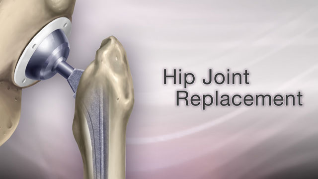 <div class=media-desc><strong>Hip joint replacement</strong><p>Your hip is hurting so bad, you can't sleep. It's hard to bathe, to clean, make it to the mailbox or shop at the mall. You may have severe arthritis in your hip, and there's a good chance you need a hip replacement.