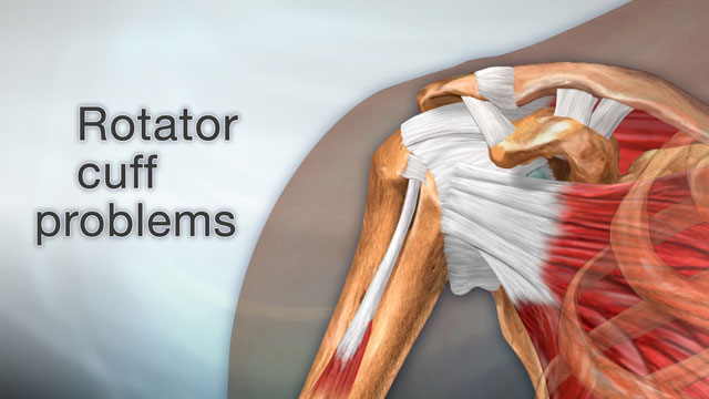 <div class=media-desc><strong>Rotator cuff problems</strong><p>Feeling pain in your shoulder when you lift your arm over your head may mean you have a have a problem with your rotator cuff. So, what causes rotator cuff problems? The rotator cuff is a group of muscles and tendons that attach to the bones of your shoulder joint. The group allows your shoulder to move and keeps it stable. Pain in your rotator cuff area usually means you have rotator cuff tendinitis, or inflammation of these tendons and inflammation of the bursa, smooth slippery sacs the tendons glide across; or a rotator cuff tear, when one the tendons is torn from overuse or injury. Rotator cuff tendinitis may be due to keeping your arm in the same position for long periods of time, such as doing computer work or hairstyling. Sleeping on the same arm each night can also cause this problem. You can also get tendinitis playing sports that require you to move your arm over your head repeatedly, such as in tennis, baseball especially pitching, swimming, and weight-lifting. Rotator cuff tears may happen if you fall on your arm while it is stretched out, or after a sudden, jerking motion when trying to lift something heavy. Chronic tears occur slowly over time, particularly in people who have chronic tendinitis. At some point, the tendon wears down and starts to tear. If you have tendinitis, you'll have pain when you lift your arm over your head, such as when you brush your hair and reach for objects on shelves. The pain may be mild at first, but over time you may have pain at rest or at night, especially when you lie on your shoulder. The pain of a sudden rotator cuff tear can be intense. Your shoulder may be weak, and you may hear a snapping sound when you move your shoulder. Chronic symptoms include a gradual worsening of pain, weakness, stiffness or loss of motion. Most people with rotator cuff tears have worse pain at night and when they wake up. To treat your rotator cuff problem, your doctor will check your shoulder for tenderness and lift your arm to see in which position you have pain. X-rays may show a bone spur, a bony projection. If your doctor thinks you have a tear, you may have an ultrasound or MRI. Treatment for rotator cuff tendinitis involves resting your shoulder and avoiding the activities that cause you pain. You can also try applying ice packs 20 minutes at a time, 3 or 4 times a day. Medicines like ibuprofen may help reduce swelling and inflammation. Eventually, you should start physical therapy to learn to stretch and strengthen the muscles of your shoulder. Surgery can remove inflamed tissue and part of the bone that lies over the rotator cuff, which may help relieve the pressure on your tendons. Someone with a partial rotator cuff tear can try rest and exercise, if they don't normally put a lot of demand on their shoulder. But if there's a complete tear, or if the symptoms don't improve with therapy, you may need surgery to repair the tendon. But with rest or exercise, symptoms of most shoulder problems often improve or go away, though it may take months.</p></div>