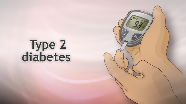 <div class=media-desc><strong>Type II diabetes</strong><p>Over the past several years, our collective diets have grown unhealthier, and our waistlines have expanded as a result. Doing so, we're putting ourselves at risk for a number of diseases, including type 2 diabetes. Diabetes is serious stuff, if it's not treated, it can lead to some pretty dangerous complications, including nerve and kidney damage. The good news is you can often avoid type 2 diabetes and its complications.  You need sugar, or glucose, to keep your body running. Normally when you eat, your pancreas releases a hormone called insulin, which moves the sugar from food out of your blood and into your cells, where it can either be used for energy, or stored. But if you have type 2 diabetes, this system doesn't work as well as it should, in part because your cells have a harder time responding to insulin. As a result, sugar builds up in your blood. Why is that a problem? Well, that excess sugar can damage organs like your eyes and kidneys, and it can lead to complications like nerve damage and heart disease.  Diabetes complications could leave you blind, lead to amputation of your toes or feet, and maybe even kill you. You can help prevent diabetes complications by keeping good control over your blood sugar, but first you need to know that you have type 2 diabetes. Sometimes it can be hard to tell because you may not have any symptoms at first. Being very thirsty, tired, or having to go to the bathroom a lot may be pretty good clues that you might have developed diabetes. Blurry vision might also be a clue. Your doctor can confirm it with a blood test.  Once you know that you have diabetes, it's your job to keep it under control. You'll need to check your blood sugar at home and talk to your doctor about how to lower it with diet, exercise, and possibly medicine. To avoid serious complications, you'll need to see not just one doctor, but a team of health care professionals. That includes a podiatrist to check your feet, an ophthalmologist to check your eyes, and a dentist for cleanings and exams. Because type 2 diabetes increases your risk for heart disease, you'll also need to see your primary care doctor regularly to have your blood pressure, cholesterol, and triglycerides checked, and to make sure your kidneys are working as well as they should.  Like any other disease, it's better to avoid getting type 2 diabetes then to have to treat it. If you're at risk because you're overweight or over age 45, ask your doctor for a blood sugar test at your next check-up. If you have already developed diabetes, you can help avoid complications by staying on top of your health, checking your blood sugars, eating a healthy diet, exercising, and seeing all of your specialists on schedule. Make your doctor a partner in your care. Call right away if you have any problems, like numbness or tingling in your legs or feet, blurry vision, extreme thirst, weakness, or fatigue.  </p></div>