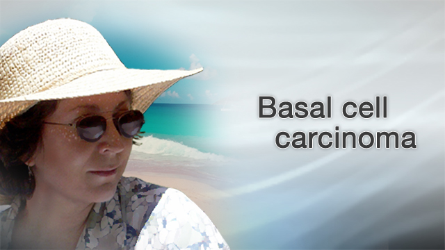<div class=media-desc><strong>Basal cell carcinoma</strong><p>If you're like many Americans, you've spent hours in the sun trying to get the perfect, golden tan. But tanning has its downsides, including an increased risk of skin cancers like basal cell carcinoma.