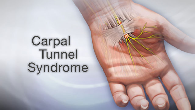 <div class=media-desc><strong>Carpal tunnel syndrome</strong><p>Typing all day on a computer keyboard can be tough on your wrists. If you type for hours at a time, day after day, eventually you may really start to feel some discomfort. The numbness, pain, and tingling you feel in your hands and wrists may be carpal tunnel syndrome, and it can have such a big effect on your life that you may eventually need surgery to treat it. Doing any repetitive motion with your hands, whether it's typing, sewing, driving, or writing, can cause carpal tunnel syndrome. The condition gets its name from an area in your wrist called the carpal tunnel. Running through this tunnel is the median nerve, which sends feeling to your palm and most of your fingers. When you do the same task over and over again, especially flexing and extending the wrist, you put pressure on the median nerve. Over time, it swells up inside the carpal tunnel until it's so tight in there that the nerve gets pinched. The classic symptoms of carpal tunnel syndrome are numbness and tingling in your hand, including the thumb, index, middle, and half of the ring finger. The discomfort is usually worse at night. And anytime you may not be able to grip things as tightly in the affected hand, and you can feel pain that may stretch all the way from the wrist to your elbow. Your doctor can run tests on your hand to confirm that your numbness, weakness, and pain are due to carpal tunnel. You may also have nerve conduction studies, or tests of the muscles. If you're feeling a lot of discomfort from carpal tunnel wearing a wrist splint especially at night could help. In addition, short term oral or injected glucocorticoid medications can help by reducing swelling. Studies have also shown some benefit from physical or occupational therapy techniques, and yoga. About half of the people with carpal tunnel though will eventually need a procedure called carpal tunnel release to lift pressure off the pinched nerve. Surgery is a more permanent solution, but whether it works depends on how severe the nerve damage is, and how long you've had it. You may not be able to completely avoid the repetitive flexing or extending the wrist that gave you carpal tunnel in the first place, especially if it's part of your job. But, you can make some adjustments, for example, by using special devices like a cushioned mouse pad, wrist braces, or a raised keyboard, to relieve the pressure on your wrists. Take occasional breaks whenever you're going to be typing or doing any other repetitive task for long periods of time. And if you are having any numbness, tingling, or pain in your hands or wrists, see your doctor sooner rather than later. Letting carpal tunnel syndrome go untreated could leave you with a permanently damaged nerve.</p></div>