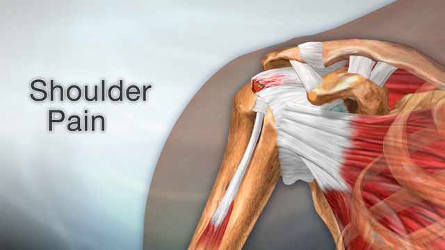 <div class=media-desc><strong>Shoulder pain</strong><p>Swelling, damage, or bone changes around the rotator cuff in your shoulder can cause pain that puts a kink in the activities of your life. Let's talk about shoulder pain. The rotator cuff is a group of muscles and tendons that attach to the bones of your shoulder joint. The group allows your shoulder to move and keep it stable. The most common cause of shoulder pain is when rotator cuff tendons become inflamed or trapped in your shoulder. This is called rotator cuff tendinitis, or irritation of these tendons and inflammation of the bursa, small slippery fluid filled sacs that the tendons glide over. A rotator cuff tear, when one of the tendons is torn from overuse or injury, can also cause intense shoulder pain. Other causes of shoulder pain can include arthritis, bone spurs - bony projections, a broken shoulder bone, frozen shoulder, when the muscles, tendons, and ligaments in your shoulder become stiff, and shoulder dislocation. Most of the time, you can take care of your shoulder pain at home. Try putting ice on your shoulder for 15 minutes, then leave it off for 15 minutes, three or four times a day for a few days. Make sure you wrap the ice in cloth, so it doesn't give you frostbite. Take ibuprofen to reduce pain and swelling. Slowly return to your regular activities once you start feeling less pain. Sudden shoulder pain can be a sign of a heart attack. Call Emergency Services if you have sudden pressure or crushing pain in your shoulder, especially if the pain starts in your chest, jaw, or neck. If you fall on your shoulder and feel sudden intense pain, you should see a doctor because you may have torn rotator cuff or dislocated your shoulder. If you have had shoulder pain before, try using ice and ibuprofen after exercising. Learn proper exercises to stretch and strengthen your rotator cuff tendons and shoulder muscles. Also, physical therapy can help. Make an appointment and talk about your options.</p></div>