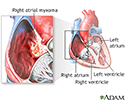 Right atrial myxoma