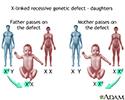 X-linked recessive genetic defects - how girls are affected