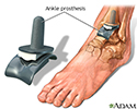 Ankle replacement