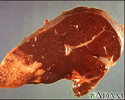 Hodgkin's disease - liver involvement
