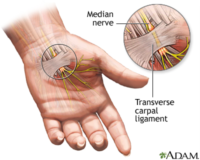 Compression of the median nerve