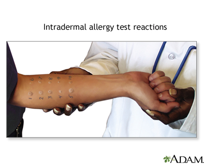 Intradermal allergy test reactions